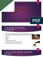 Carcinomas