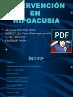 hipoacusia11-130107152640-phpapp02-1