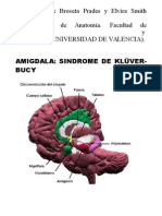 Sindrome Kluver