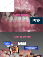 Caries Dental Odontopediatria