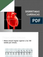 Disrritmias-cardiacas