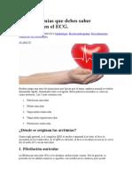 Las 5 arritmias que debes saber identificar en el ECG.docx