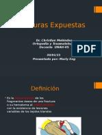 Fracturas Expuestas clasificacion
