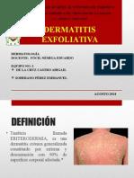 Dermatitis Exfoliativa