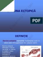 Sarcina Ectopica e