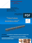 fractura mandibular