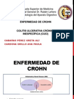Enf Crohn y Cuci