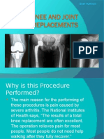 hip, knee and joint replacement ppt