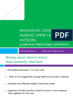 Managing Congenitally Missing Upper Laterals