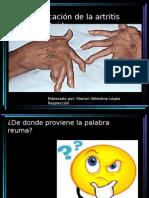 Clasificación de La Artritis Reumatoide