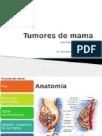 Tumores de Mama
