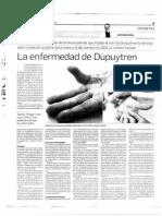 La enfermedad de Dupuytren