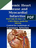 Curs Cardiopatia Ischemica ,Fina 2014lppt