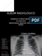 Album Radiográfico rotación de cardiología.