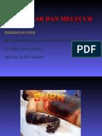 19991004 Terbakar Dan Melecur366 1