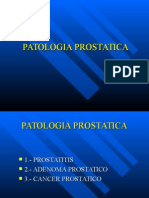 Patologia_prostatica