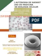 Esferocitosis.pptx