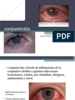 Conjuntivitisviral y Bacteriana