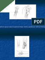 2.-Rupturi-tendinoase