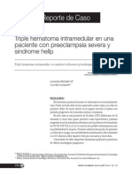 Triple Hematoma Intrameludar en Una Paciente