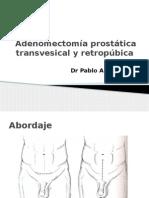 Instrumentacion Prostata