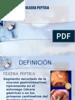 Ulcera Peptidica