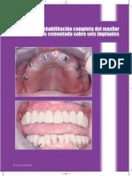 Artyculo Maxillaris. Especial Implantes 2009 Gonzalez