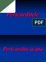 C15 - Pericardite