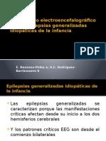 Diagnostico Electroencefalografico de Las Epilepsias Generalizadas de La Infancia
