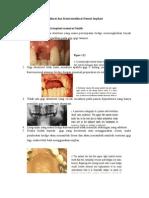 Indikasi Dan Kontraindikasi Dental Implant