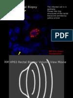 Rectal Biopsy HP63