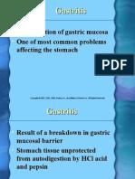 Ch 42 Gastritis
