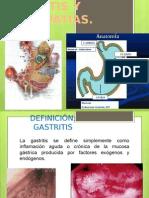 GASTRITIS Y GASTROPATIAS..pptx