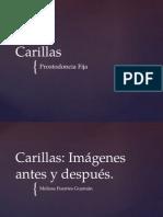 Carillas, Prostodoncia Fija.