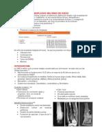 Neoplasia Malignas de Hueso