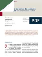 Adaptacion de lente de contacto en paciente con sindrome de marfan