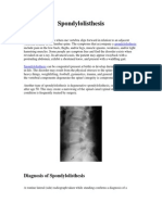 spondylolisthesis.pdf