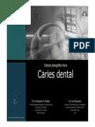 Caries Dental Diagnostico
