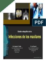 INFECCIONES_DE_LOS_MAXILARES_DIAGNOSTICO.pdf