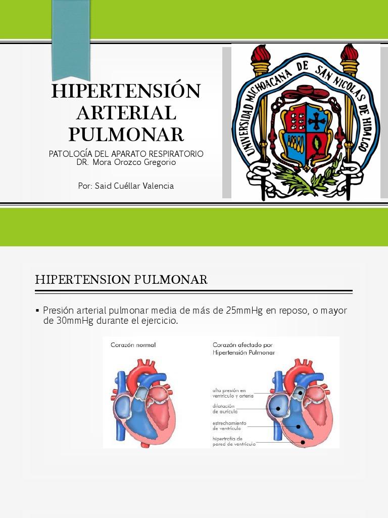 Hipertensión Arterial Pulmonar - Hipertensión - Pulmón