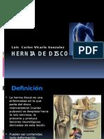 herniadedisco