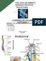 Tumores de Columna Vertebral