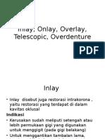 Inlay, Onlay, Overlay, Telescopic,