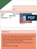 Keratitis Jamur