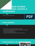 Enfermedad tiroidea autoinmune