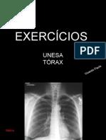 Radiologia tórax