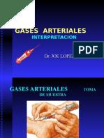 Interpretacion de Gases Arteriales AGA