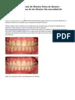 Mejor Blanqueamiento de Dientes Pasta de dientes - Eliminar las Manchas de los Dientes Sin necesidad de Blanqueo