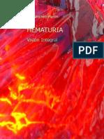 HEMATURIA Vision Integral