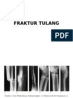 FRAKTUR TULANG.pptx